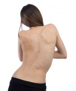 Scoliosis, Bent Spine, Curved Spine, Back Pain, Back Ache
